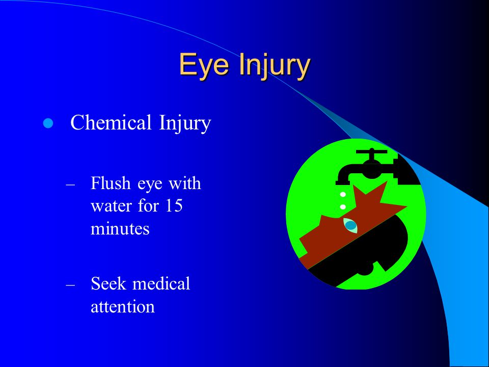 Eye Injury Chemical Injury – Flush eye with water for 15 minutes – Seek medical attention