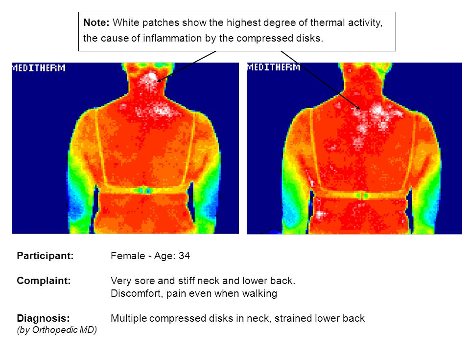 CASE STUDY USING THERMAL IMAGING Prior to treatment Participant: Female - Age: 34 Complaint: Very sore and stiff neck and lower back. Discomfort, pain