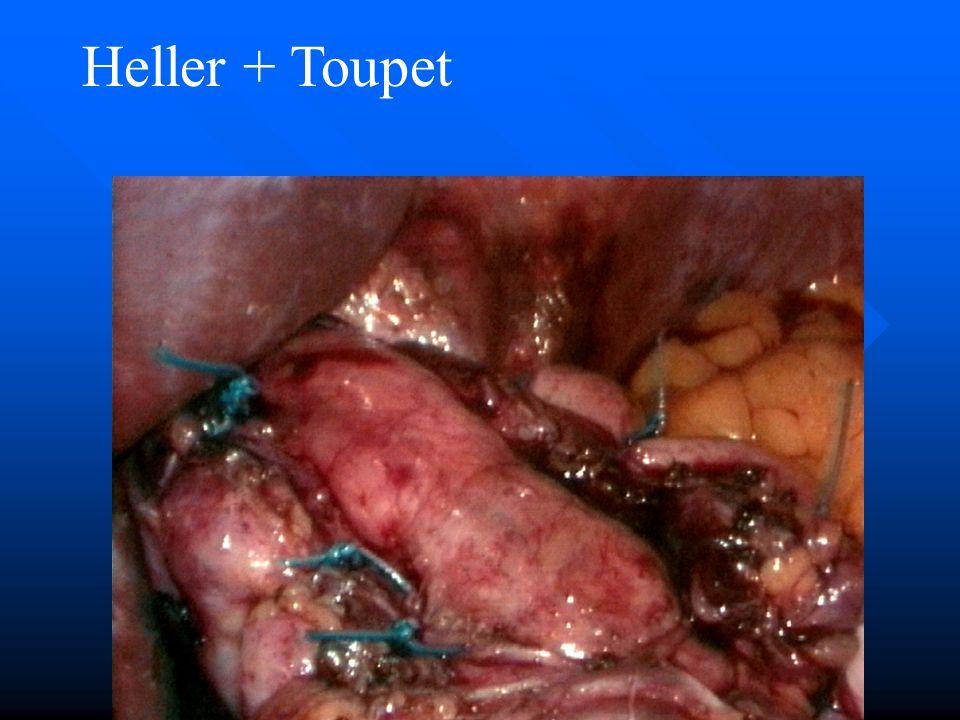 Heller + Toupet