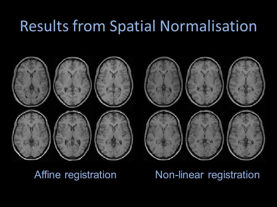 Results from Spatial Normalisation Non-linear registrationAffine registration