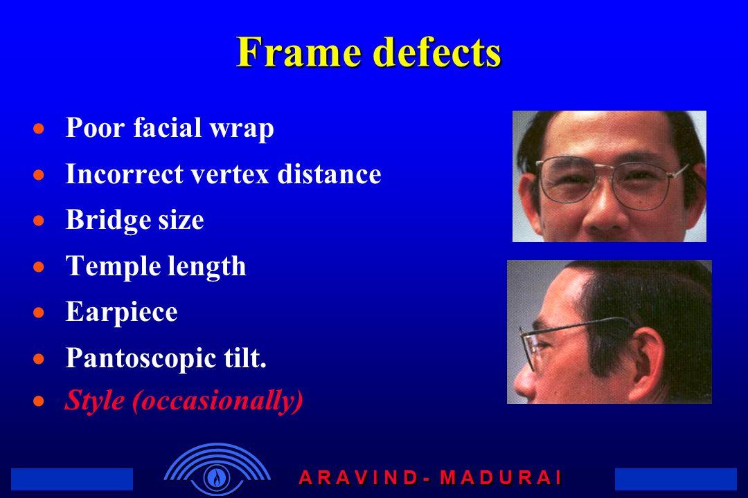 A R A V I N D - M A D U R A I Frame defects  Poor facial wrap  Incorrect vertex distance  Bridge size  Temple length  Earpiece  Pantoscopic tilt.