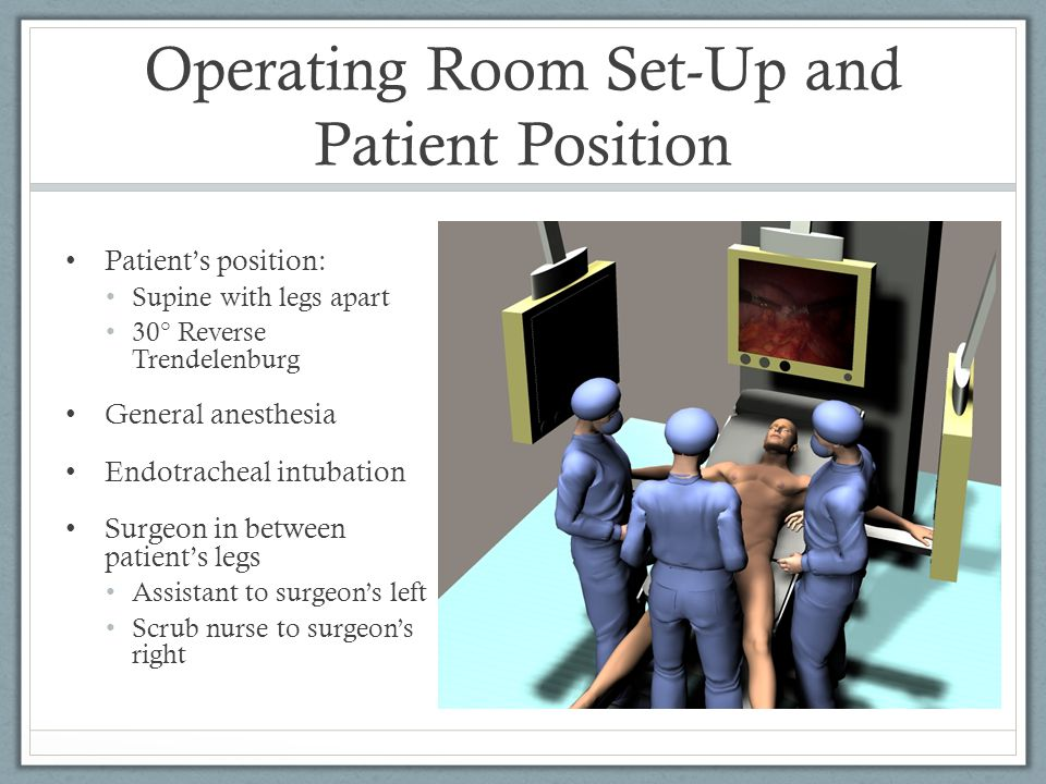 Operating Room Set-Up and Patient Position Patient's position: Supine with legs apart 30° Reverse Trendelenburg General anesthesia Endotracheal intuba