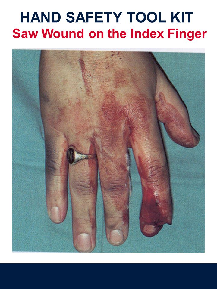 HAND SAFETY TOOL KIT Saw Wound on the Index Finger