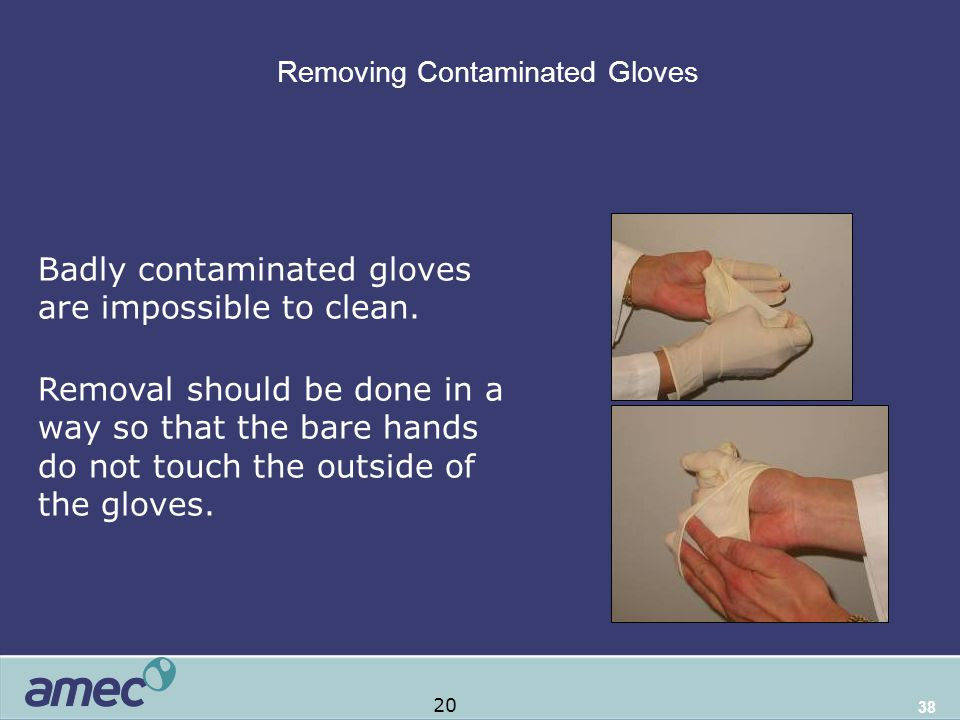 38 Removing Contaminated Gloves Remove contaminated gloves safely and properly Badly contaminated gloves are impossible to clean.