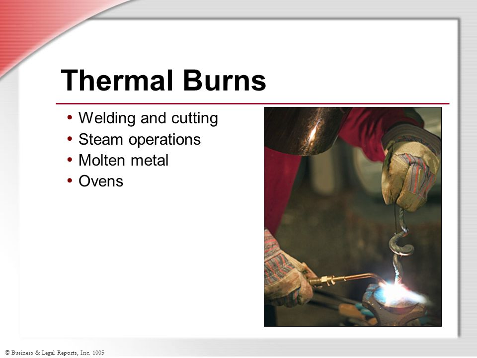 © Business & Legal Reports, Inc. 1005 Thermal Burns Welding and cutting Steam operations Molten metal Ovens