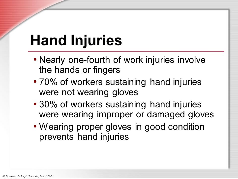 © Business & Legal Reports, Inc.1005 Hand Hazards and Injuries—Any Questions.