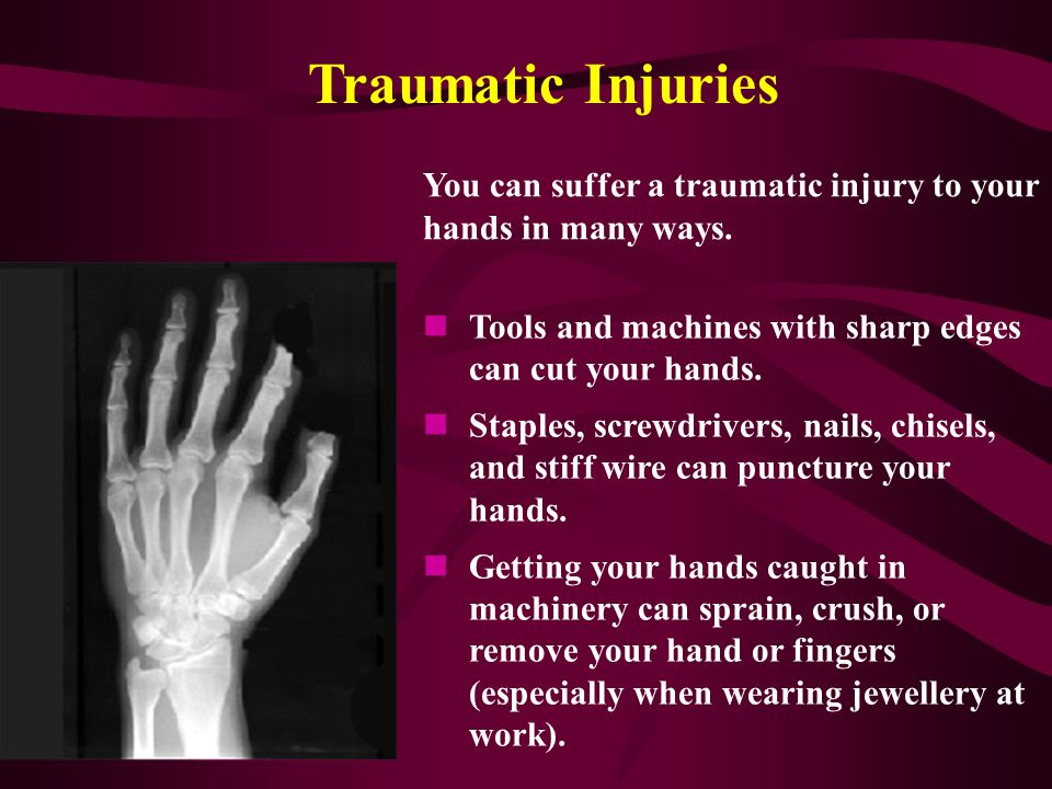 Reported Hand Injury Contributory Factors Hand and powered tools Vibration Crushing/Pinch Points Dropped Objects Struck by moving parts Contact with S