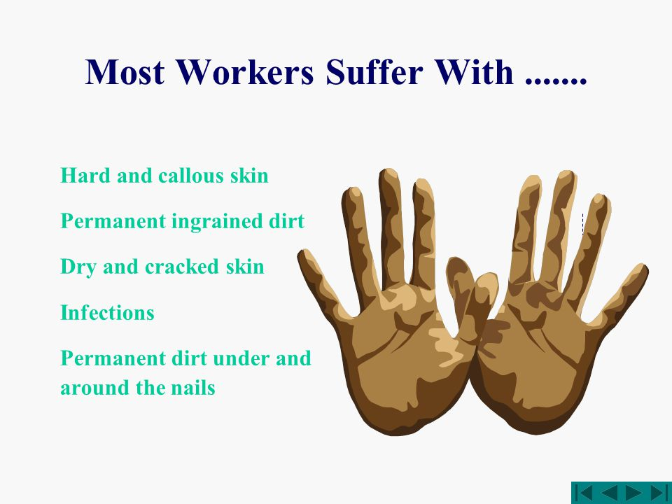 Most Workers Suffer With.......