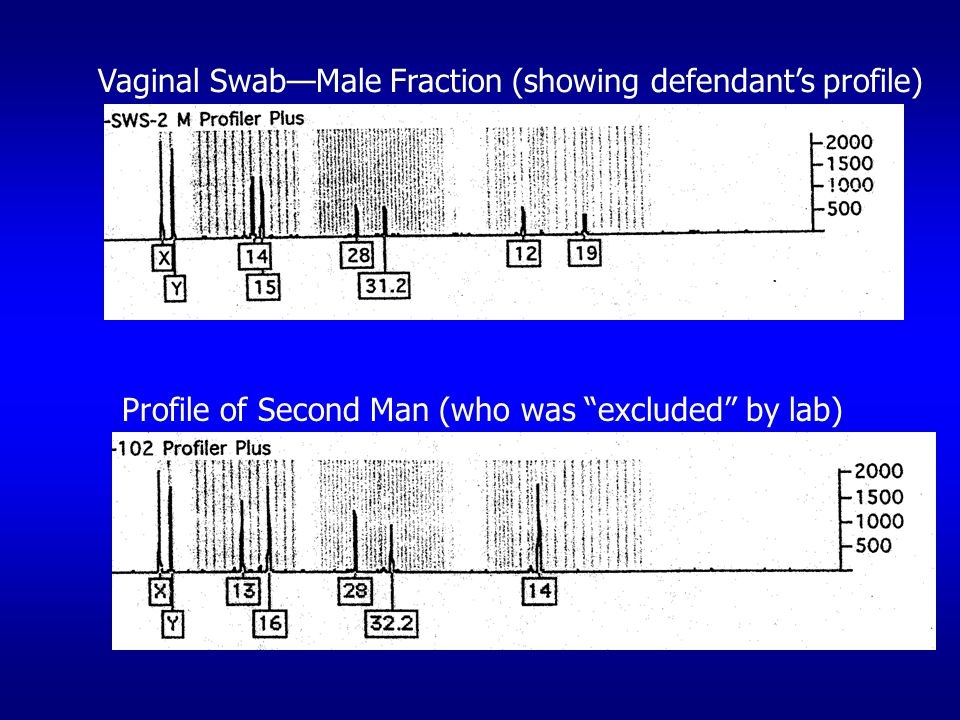 Vaginal Swab—Male Fraction (showing defendant's profile) Profile of Second Man (who was excluded by lab)