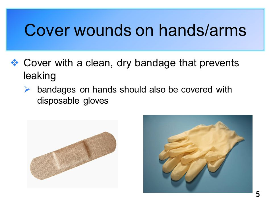 5 Cover wounds on hands/arms  Cover with a clean, dry bandage that prevents leaking  bandages on hands should also be covered with disposable gloves