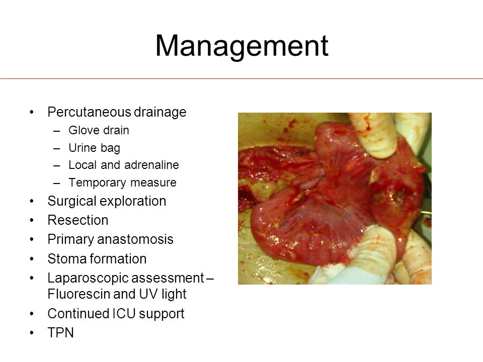 Management Percutaneous drainage –Glove drain –Urine bag –Local and adrenaline –Temporary measure Surgical exploration Resection Primary anastomosis Stoma formation Laparoscopic assessment – Fluorescin and UV light Continued ICU support TPN
