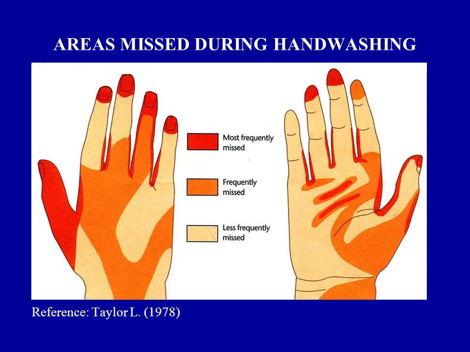 AREAS MISSED DURING HANDWASHING Reference: Taylor L. (1978)