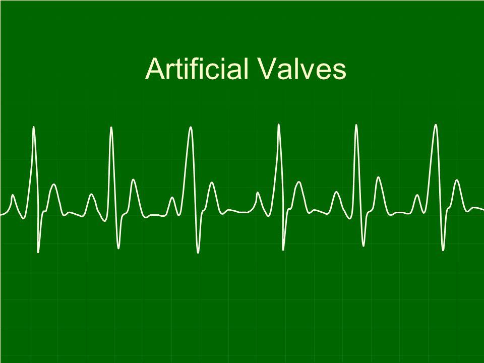 Artificial Valves