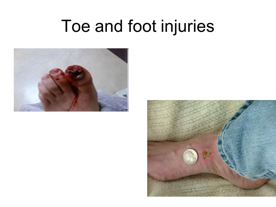 Toe and foot injuries