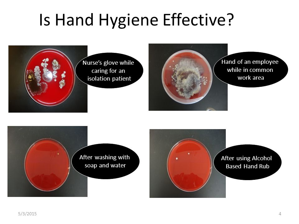 5/3/20154 Is Hand Hygiene Effective? Nurse's glove while caring for an isolation patient Hand of an employee while in common work area After washing w