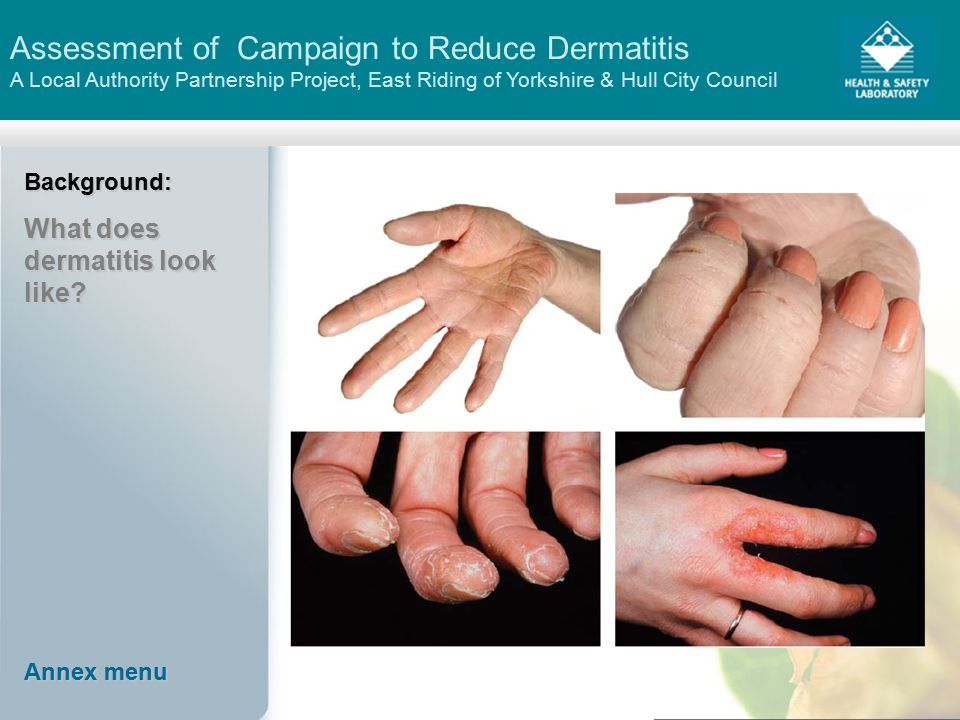 Assessment of Campaign to Reduce Dermatitis A Local Authority Partnership Project, East Riding of Yorkshire & Hull City CouncilBackground: What does dermatitis look like.