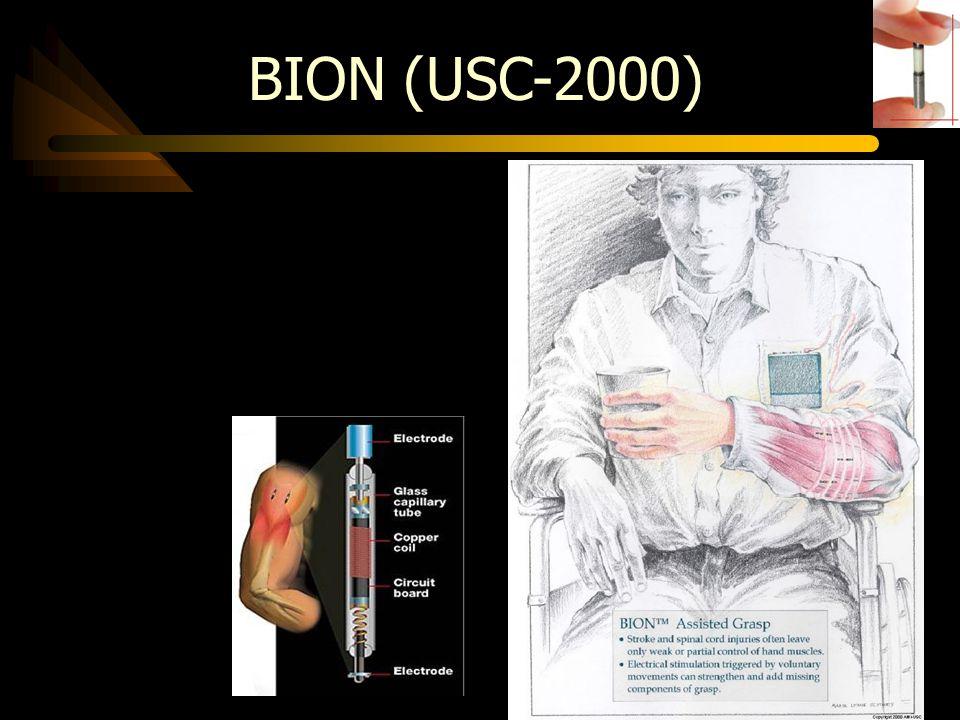 BION (USC-2000)