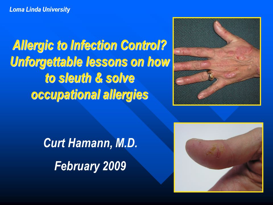 Loma Linda University Curt Hamann, M.D. February 2009 Allergic to Infection Control? Unforgettable lessons on how to sleuth & solve occupational aller