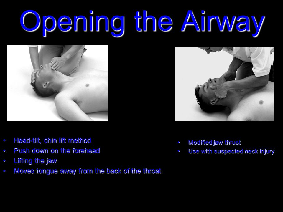 Opening the Airway Head-tilt, chin lift methodHead-tilt, chin lift method Push down on the foreheadPush down on the forehead Lifting the jawLifting the jaw Moves tongue away from the back of the throatMoves tongue away from the back of the throat Modified jaw thrustModified jaw thrust Use with suspected neck injuryUse with suspected neck injury