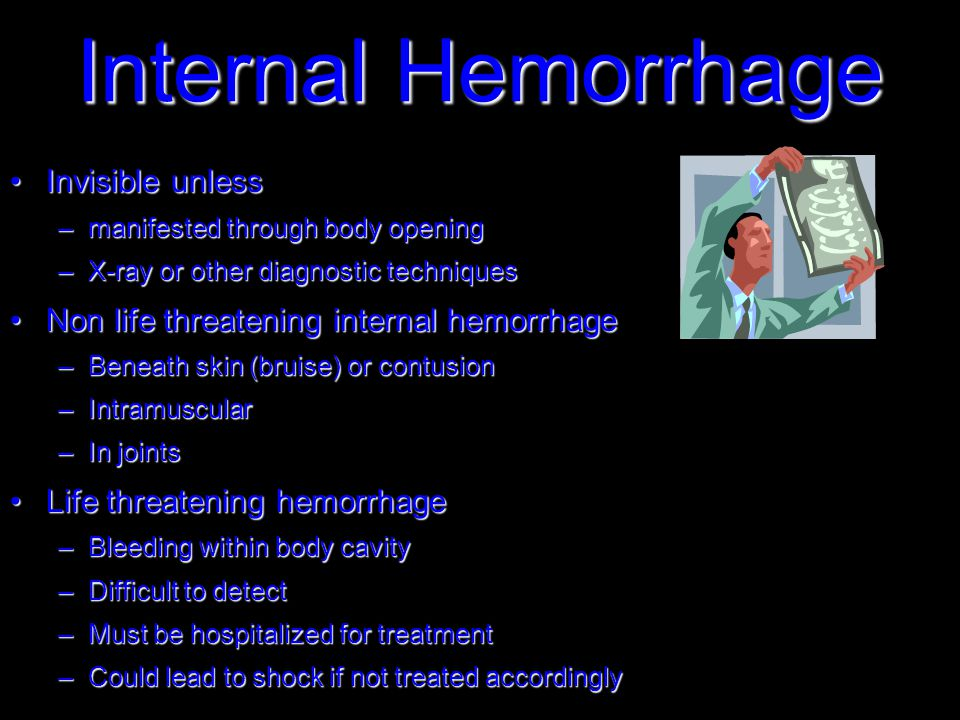 Internal Hemorrhage Invisible unlessInvisible unless –manifested through body opening –X-ray or other diagnostic techniques Non life threatening internal hemorrhageNon life threatening internal hemorrhage –Beneath skin (bruise) or contusion –Intramuscular –In joints Life threatening hemorrhageLife threatening hemorrhage –Bleeding within body cavity –Difficult to detect –Must be hospitalized for treatment –Could lead to shock if not treated accordingly