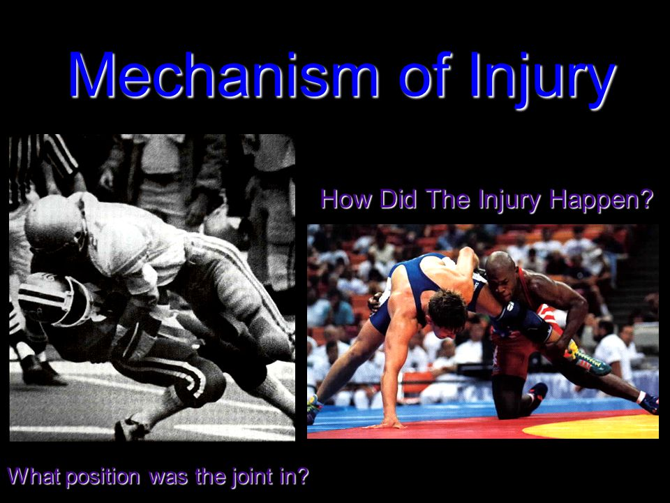Mechanism of Injury How Did The Injury Happen What position was the joint in