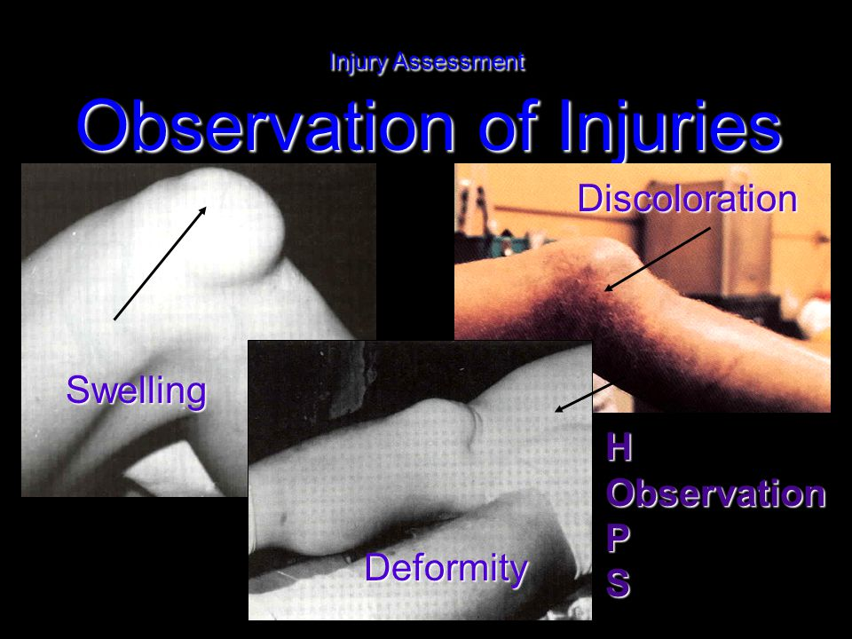 Injury Assessment Observation of Injuries Discoloration Swelling Deformity HObservationPS