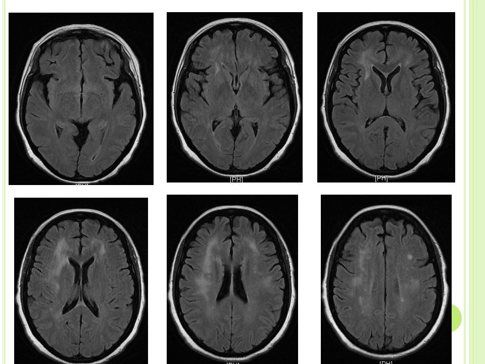 MRI B RAIN 12/6/12 ( TIME OF PRESENTATION ) Development of patchy and confluent areas of FLAIR hyperintinsity predominantly involving the deep bifrontal hemispheric white matter consistent with moderate nonspecific white matter disease.