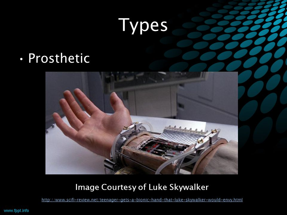 Types Prosthetic Image Courtesy of Luke Skywalker http://www.scifi-review.net/teenager-gets-a-bionic-hand-that-luke-skywalker-would-envy.html