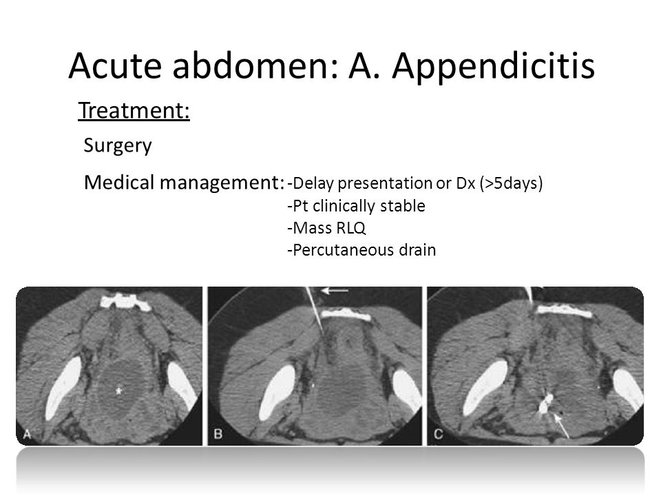Acute abdomen: A. Appendicitis Treatment: Surgery Medical management: -Delay presentation or Dx (>5days) -Pt clinically stable -Mass RLQ -Percutaneous