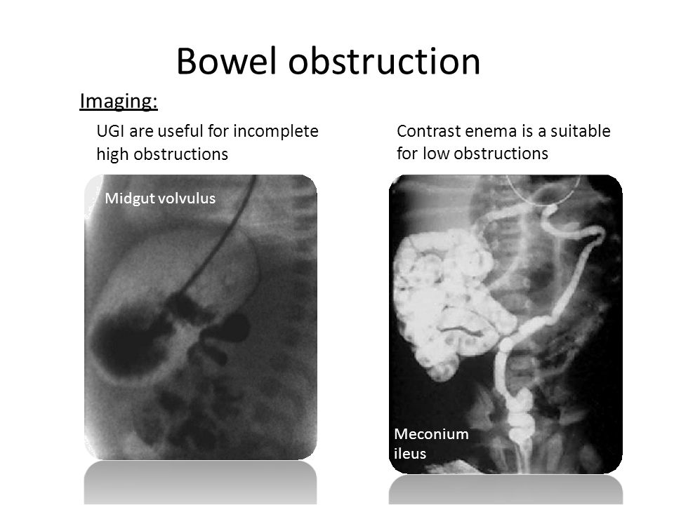 Bowel obstruction Imaging: UGI are useful for incomplete high obstructions Contrast enema is a suitable for low obstructions Midgut volvulus Meconium