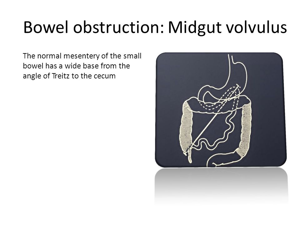 Bowel obstruction: Midgut volvulus The normal mesentery of the small bowel has a wide base from the angle of Treitz to the cecum