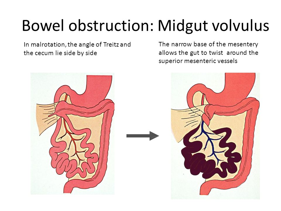 Bowel obstruction: In malrotation, the angle of Treitz and the cecum lie side by side Midgut volvulus The narrow base of the mesentery allows the gut