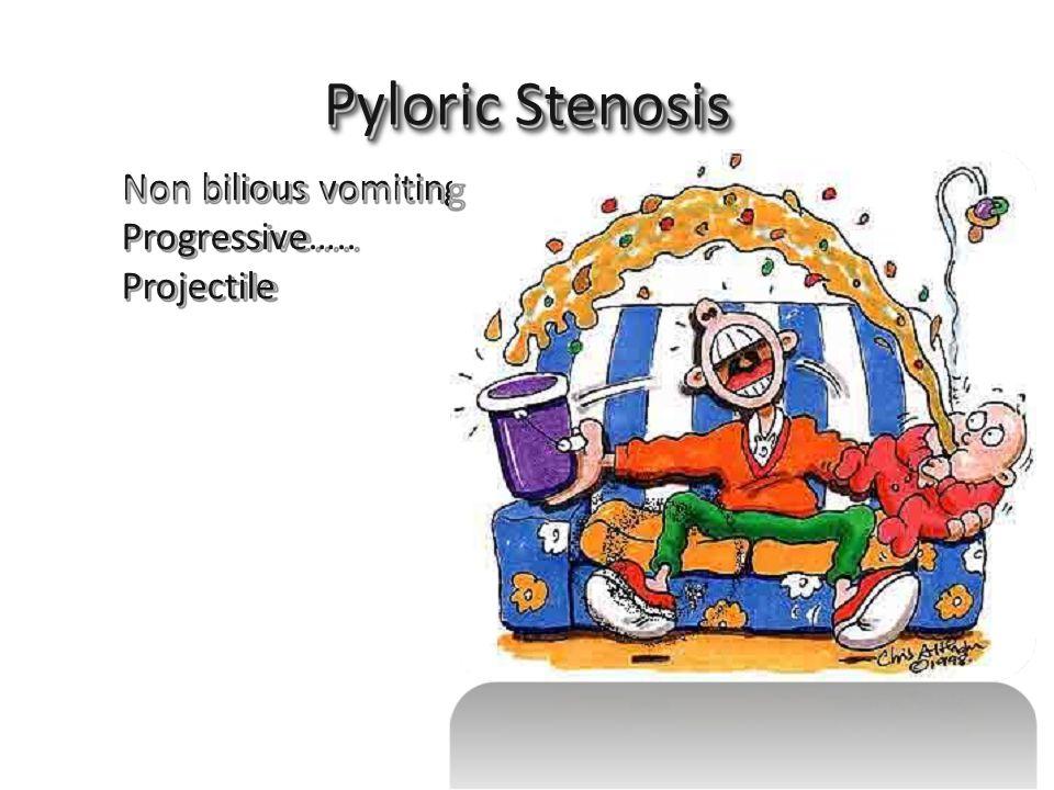 Non bilious vomiting Pyloric Stenosis Progressive….. Projectile