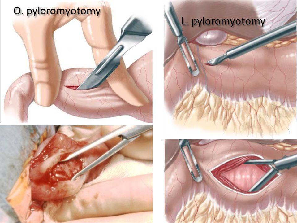O. pyloromyotomy L. pyloromyotomy
