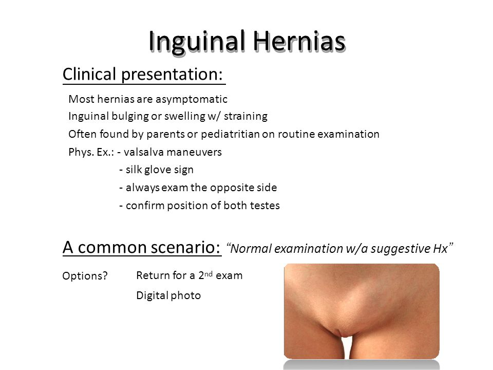 Inguinal Hernias Clinical presentation: Most hernias are asymptomatic Inguinal bulging or swelling w/ straining Often found by parents or pediatritian