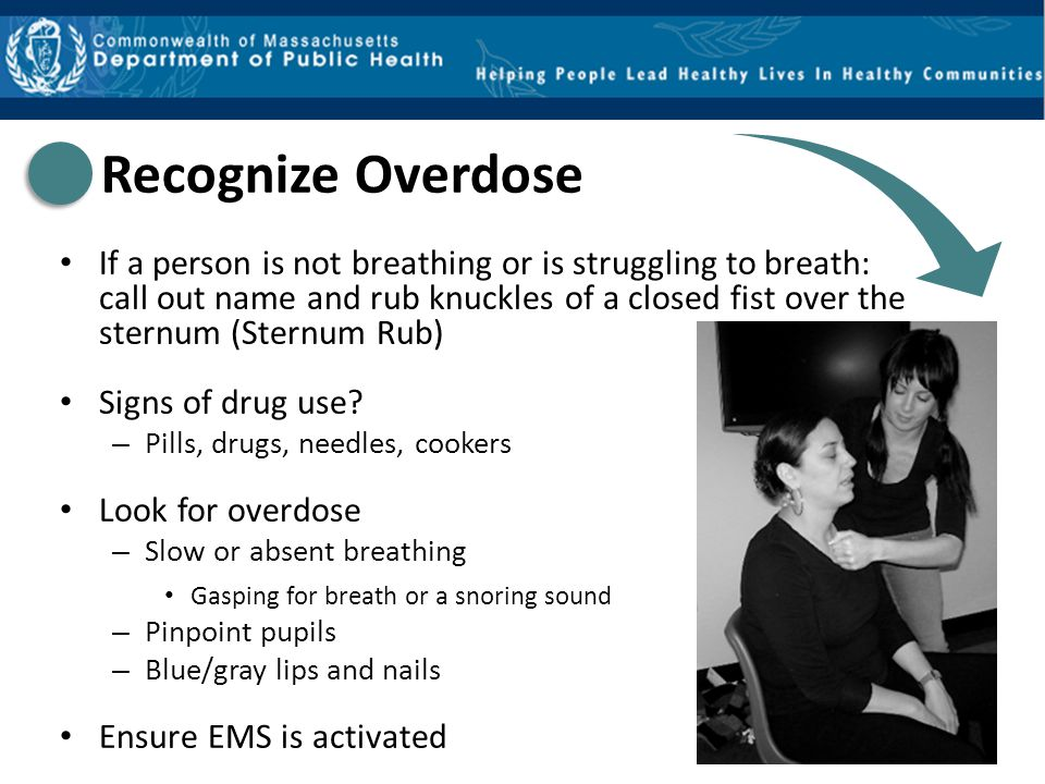Just high/overmedicated Small pupils Drowsy, but arousable – Responds to sternal rub Speech is slurred Drowsy, but breathing – 8 or more times per minute Overdose Small pupils Not arousable – No response to sternal rub Not speaking Breathing slow or stopped – < 8 times per minute – May hear choking sounds or a gurgling/snoring noise – Blue/gray lips and fingertips Just high/overmedicated vs.