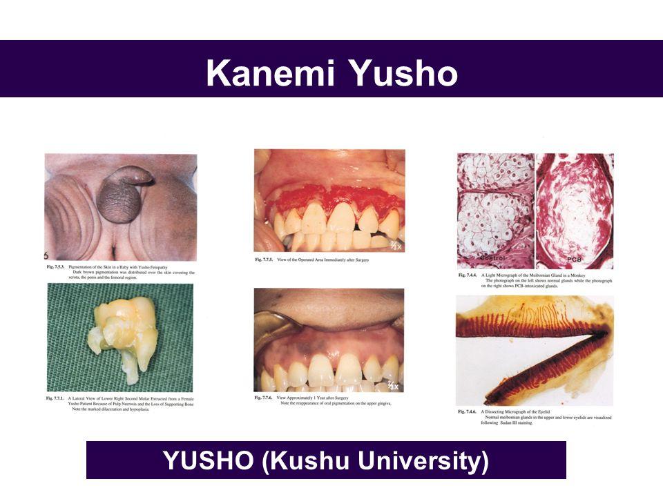 Kanemi Yusho YUSHO (Kushu University)
