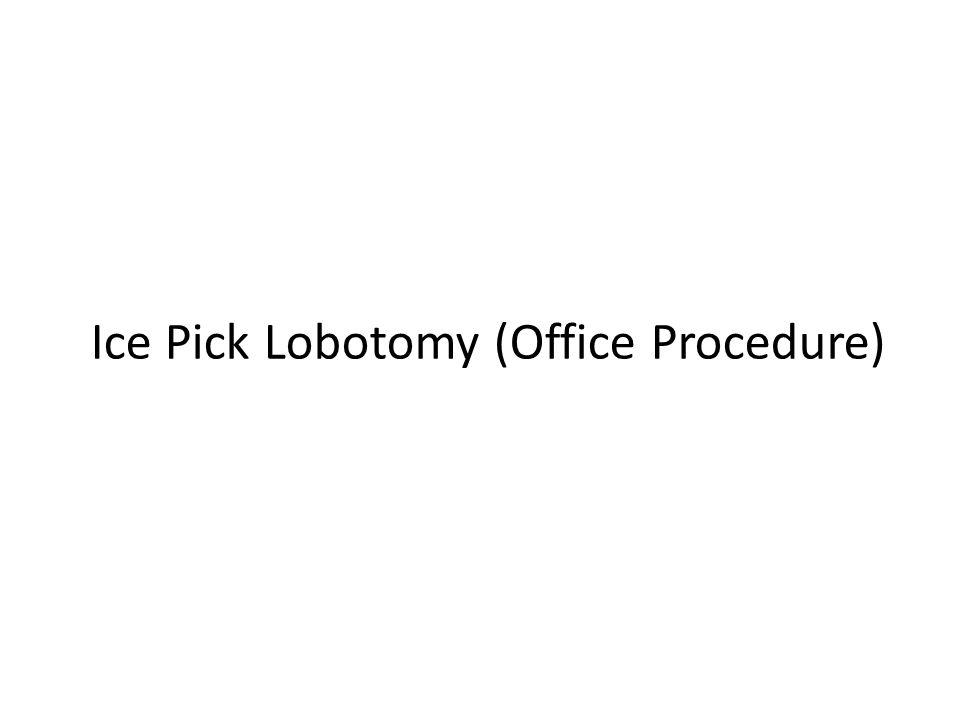 Ice Pick Lobotomy (Office Procedure)