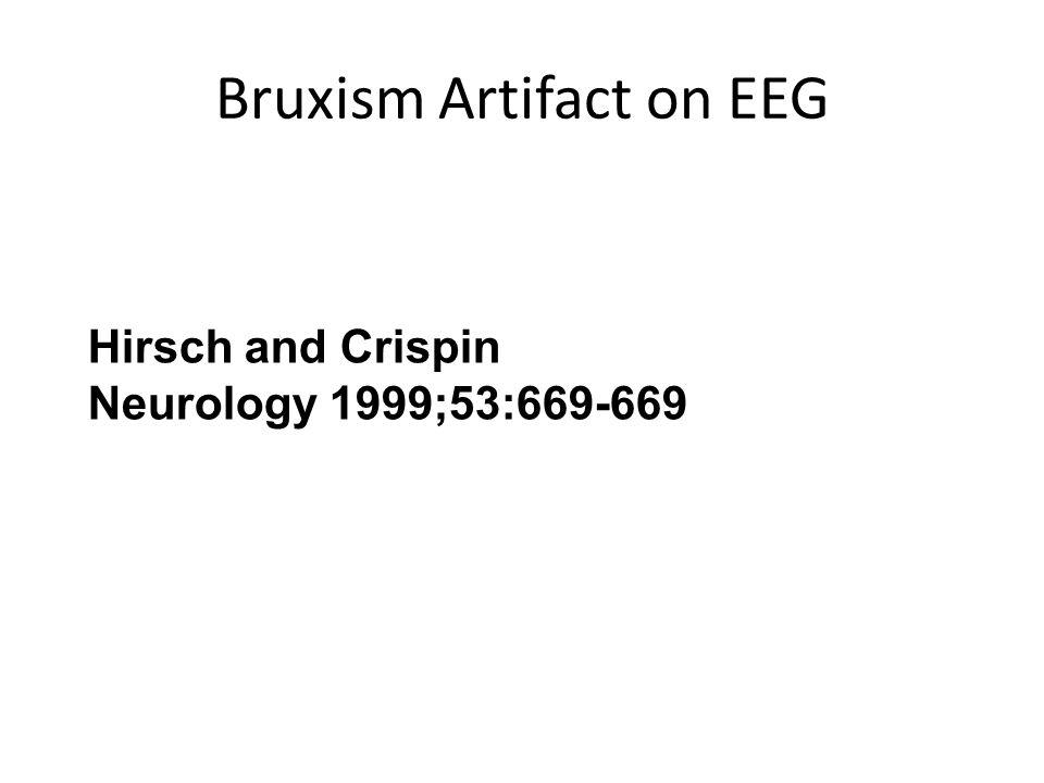 Bruxism Artifact on EEG Hirsch and Crispin Neurology 1999;53:669-669