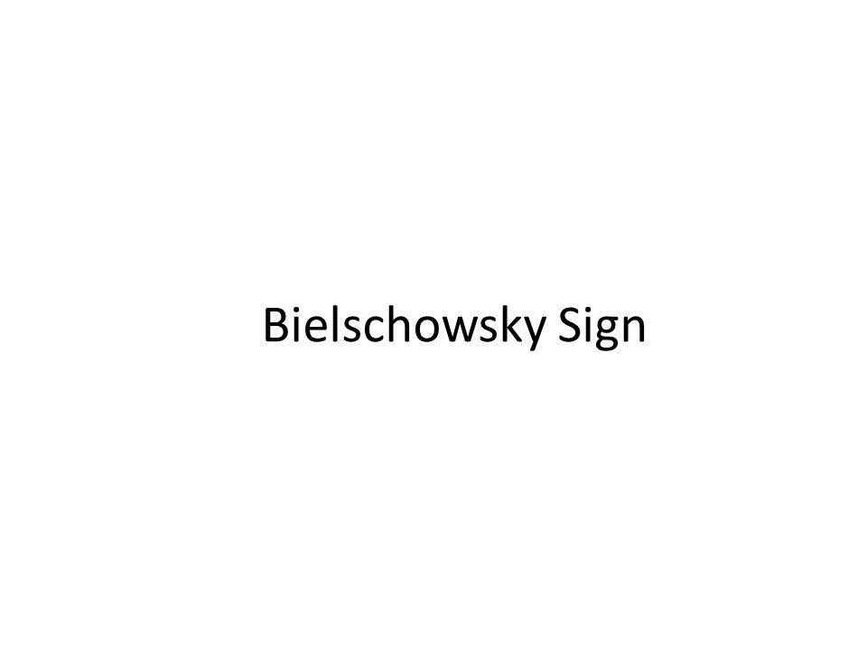 Bielschowsky Sign