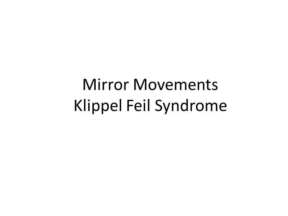 Mirror Movements Klippel Feil Syndrome