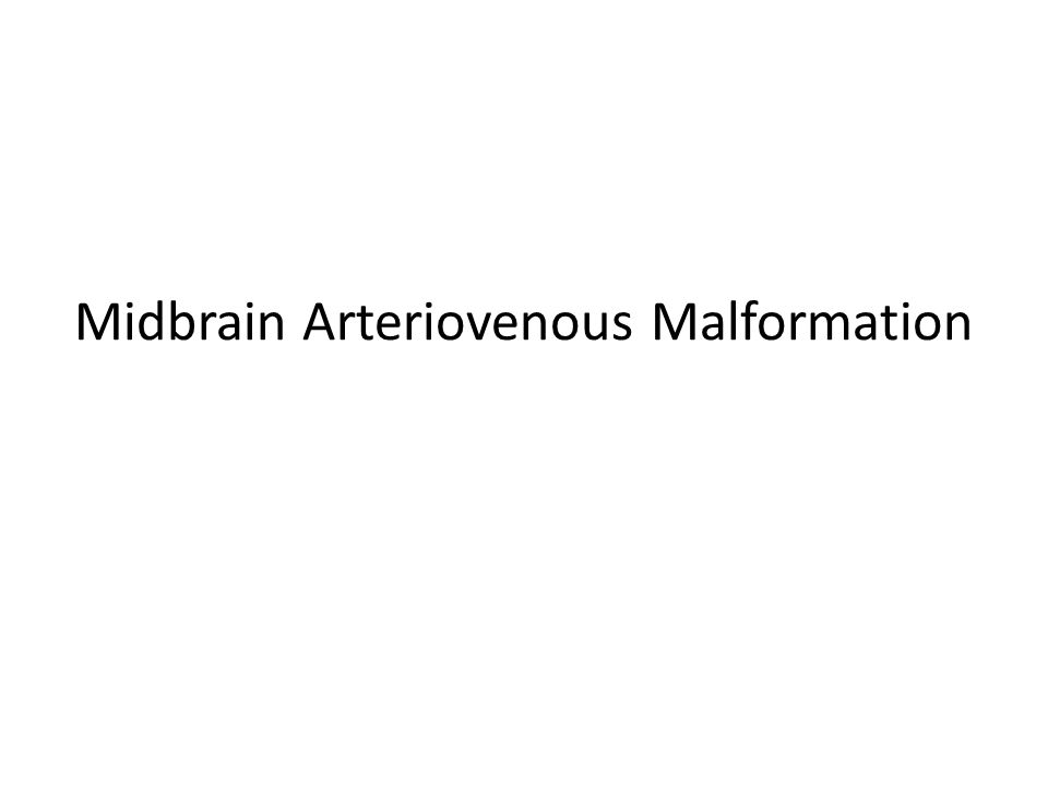 Midbrain Arteriovenous Malformation