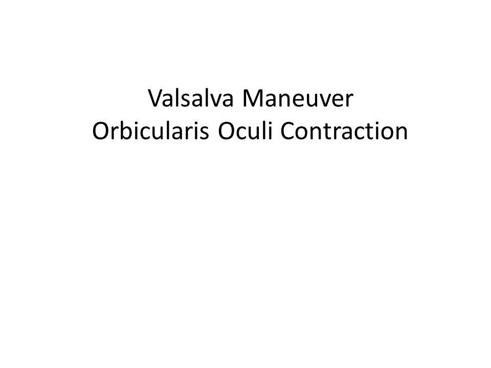 Valsalva Maneuver Orbicularis Oculi Contraction