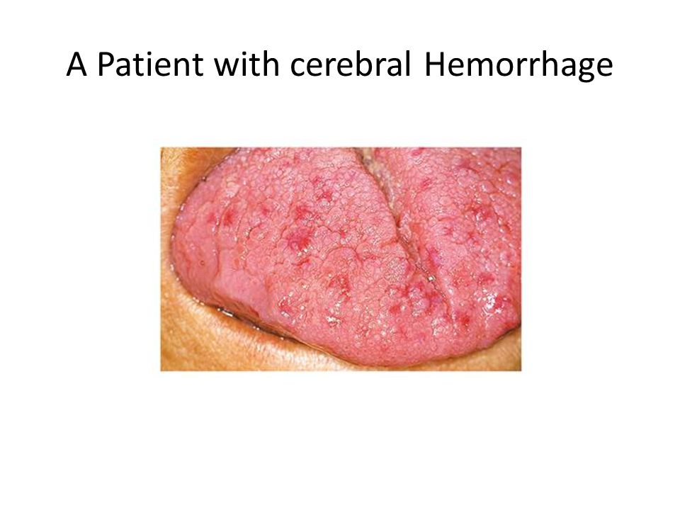 A Patient with cerebral Hemorrhage