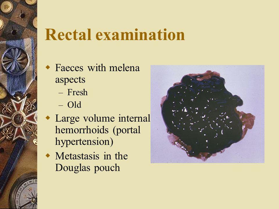 Rectal examination  Faeces with melena aspects – Fresh – Old  Large volume internal hemorrhoids (portal hypertension)  Metastasis in the Douglas po