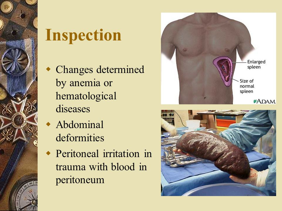 Inspection  Changes determined by anemia or hematological diseases  Abdominal deformities  Peritoneal irritation in trauma with blood in peritoneum