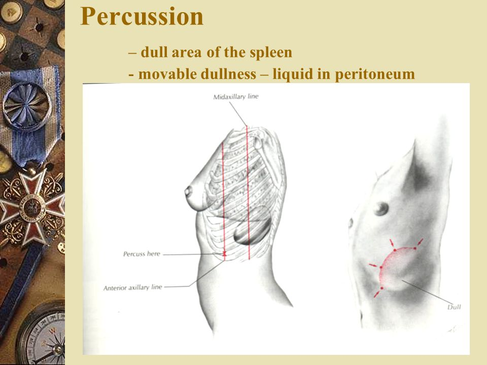 Percussion – dull area of the spleen - movable dullness – liquid in peritoneum