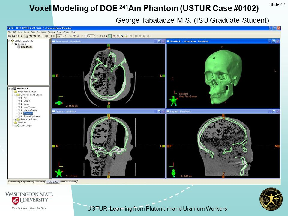Slide 47 USTUR: Learning from Plutonium and Uranium Workers Voxel Modeling of DOE 241 Am Phantom (USTUR Case #0102) George Tabatadze M.S.