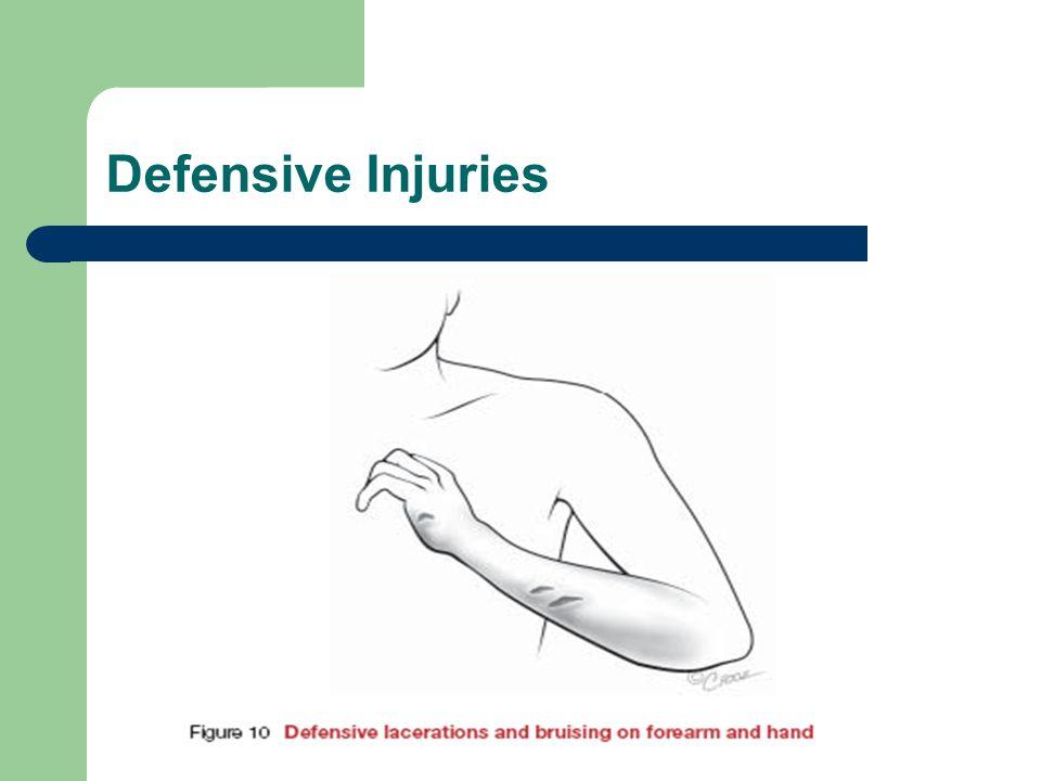 Defensive Injuries