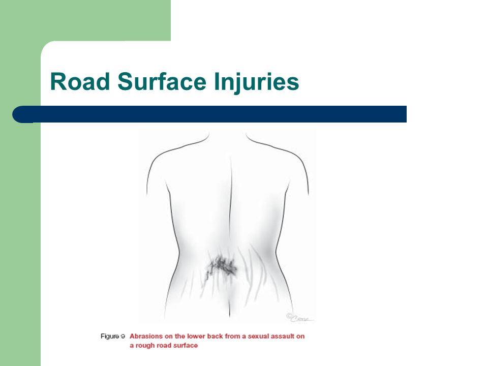 Road Surface Injuries